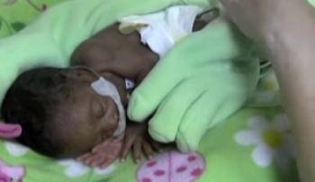 Bebelusul asta mititel a fost nascut prematur la 6 luni iar mama lui a avut o idee geniala! De ce l-a acoperit cu o manusa de spalat vasele este uluitor