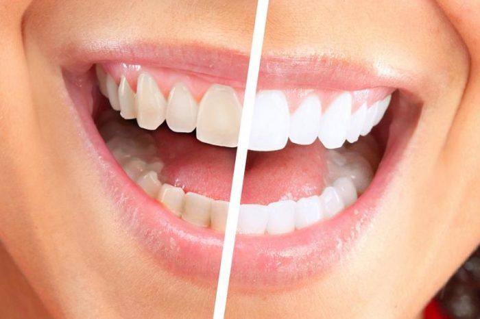Scapa de tartru de pe dinti la tine acasa! Ce ingrediente ieftine si naturale te ajuta sa ai dantura curata VIDEO