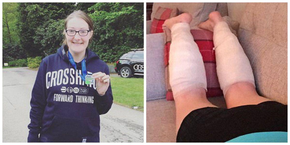 Soarele puternic i-a distrus picioarele! Femeia a alergat 21 de ore incontinuu, iar acum zace pe un pat de spital! In ce HAL arata de la genunchi in jos