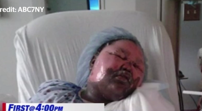 MACABRU! O fetita de 11 ani a ajuns in stare grava la spital! Ce i-a facut prietena ei, in somn!