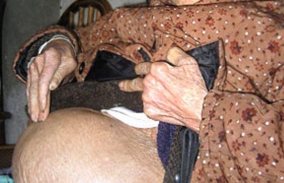 A stat timp de 60 de ani cu burta umflata! Cand s-a prezentat la spital, femeia de 92 de ani a reusit sa-i socheze pe medici. Ce crescuse in abdomenul ei