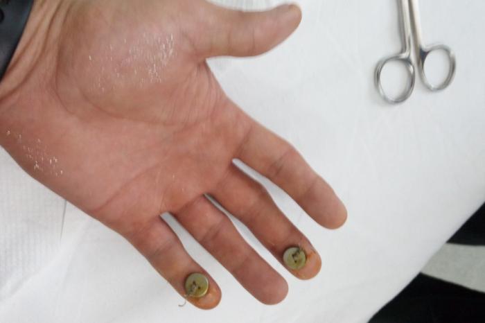Povestea socanta a unui tanar, mutilat de un medic din Cluj! Barbatul s-a ales cu degetul sanatos taiat din greseala. Chiar pacientul i-a atras atentia doctorului
