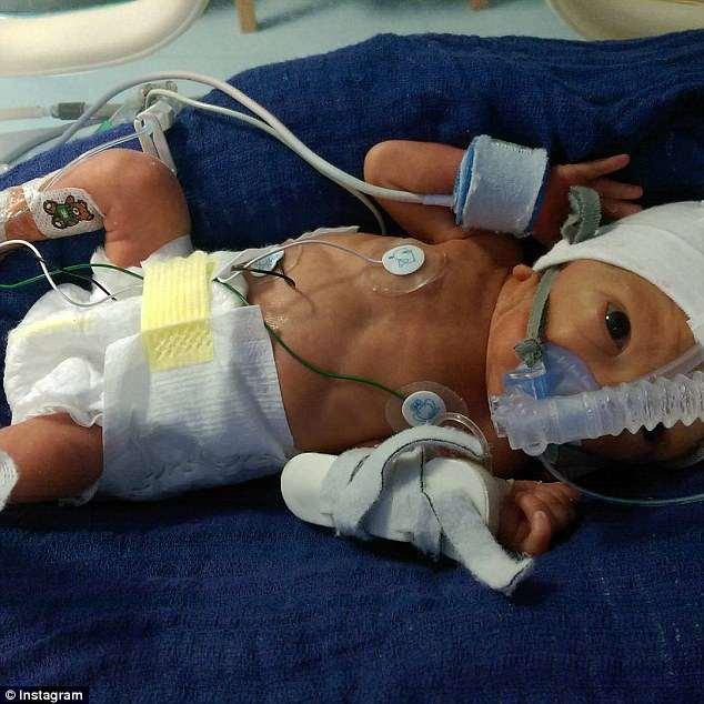 I s-a rupt apa la 18 saptamani de sarcina! Medicii i-au spus sa avorteze, dar ea nu a vrut