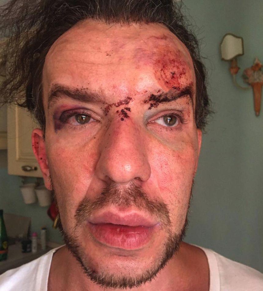 Stephan Pelger a fost jefuit si batut de 2 femei