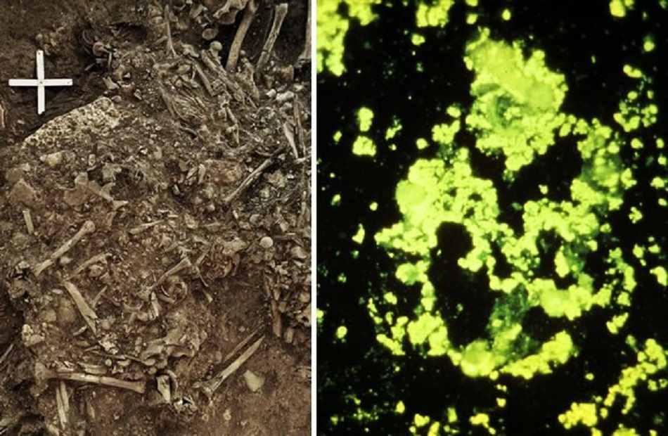 Descoperire infricosatoare intr-un mormant vechi de 5.000 de ani