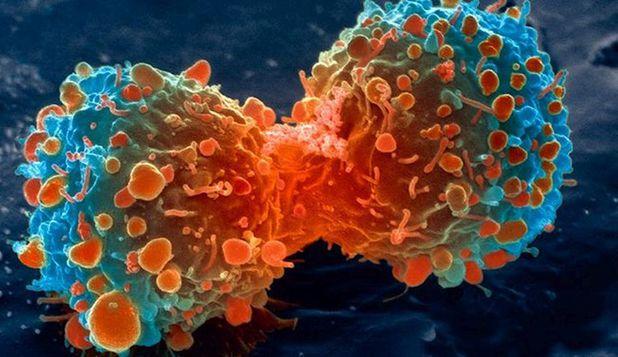 S-a descoperit testul care depisteaza cancerul