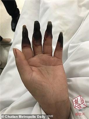 putrezind între degete