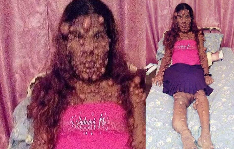 Femeia care arata precum un monstru dupa ce a nascut al doilea copil
