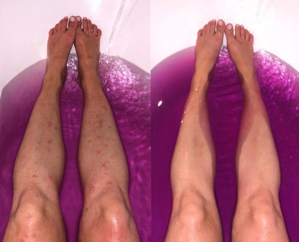 Tanara de 29 de ani s-a vindecat de eczema cu doar doua ingrediente