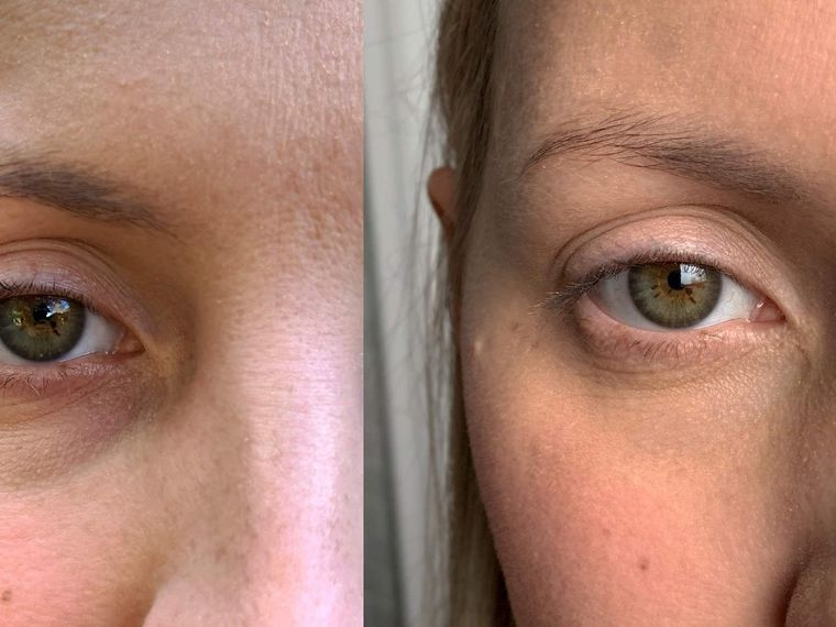 Cum îngrijești corect pielea din jurul ochilor. Adio, cearcăne și riduri fine!