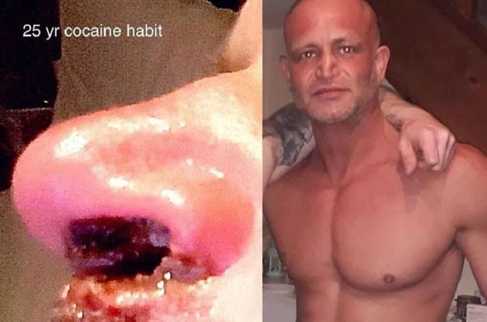 Cum arata nasul unui consumator de cocaina timp de 25 de ani