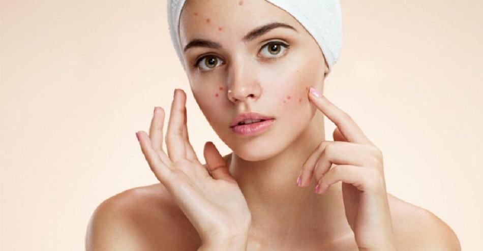 Alimente anti-acnee pe care e bine sa le consumi daca vrei sa ai un ten perfect