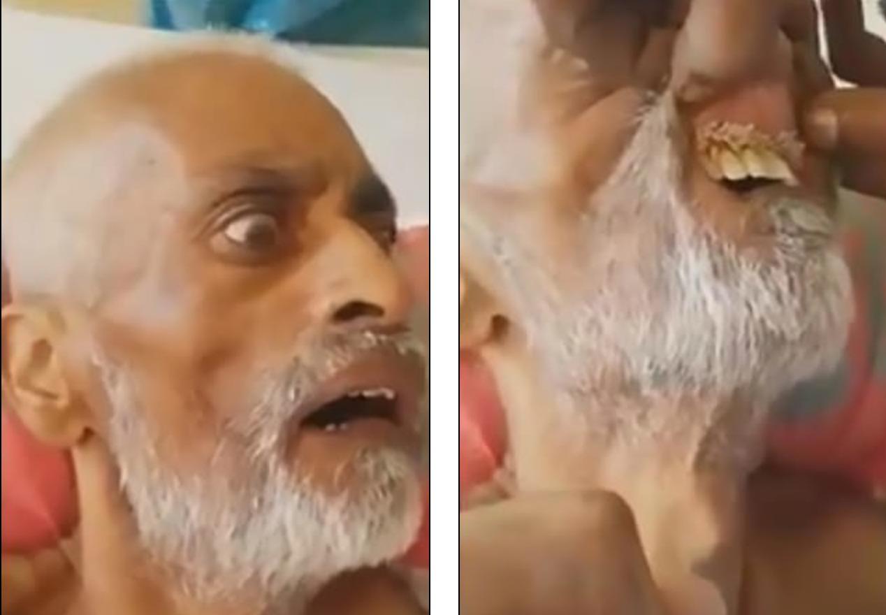 Fiul unuFiul unui pacient a gasit viermi in interiorul gurii tatalui saui apcient a gasit viermi in interiorul gurii tatalui sau