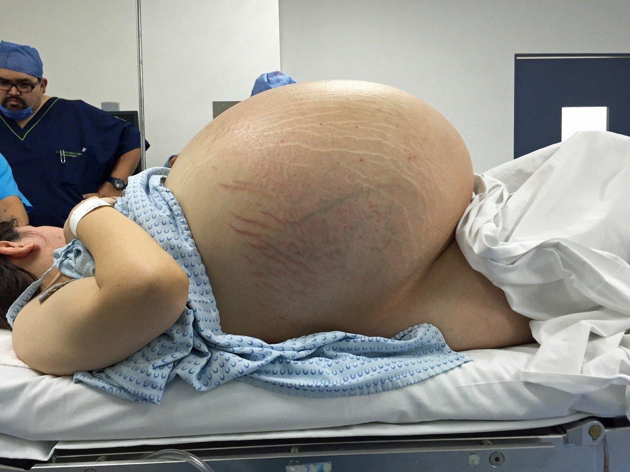 Medicii credeau ca e gravida si au vrut sa ii faca cezariana. Ce s-a intamplat in cateva minute e socant