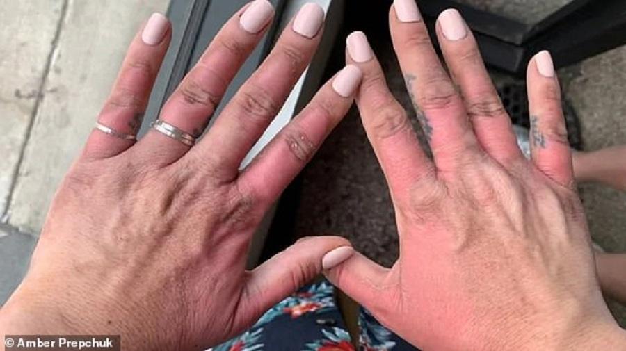 Si-a ars mainile dupa ce a taiat un fruct, in soare