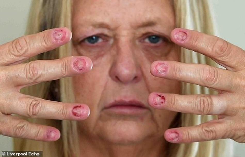 Unghii putrezite din cauza unei boli misterioase
