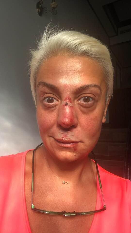 Monica Anghel desfigurata