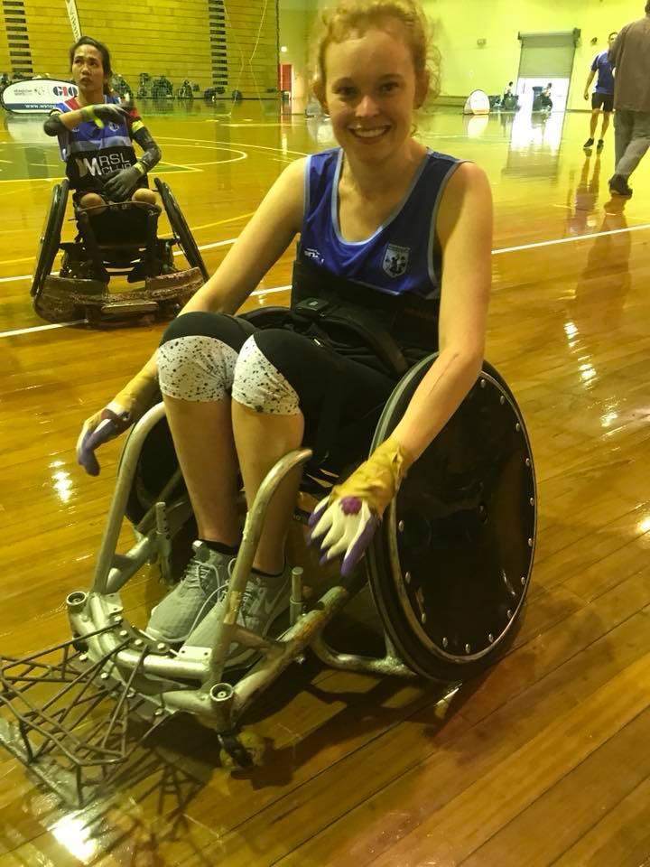 Povestea femeii care a rămas paralizată