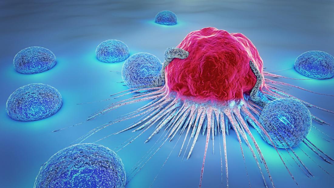 Cancerul, principala cauză de deces